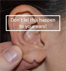 Pierced damaged ears